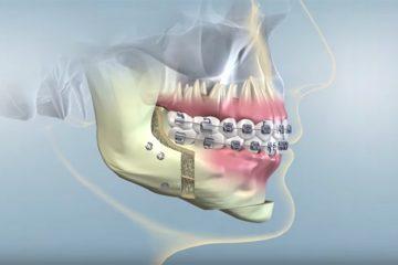 Reabilitacija po ortognatinės chirurgijos